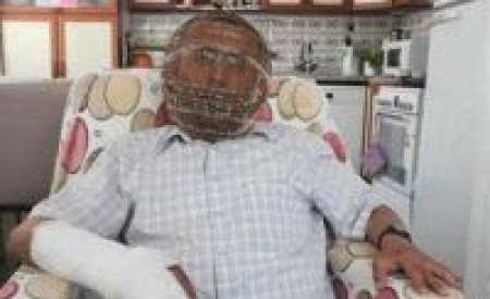 PHOTO: Man Locks Head in Cage to quit Smoking